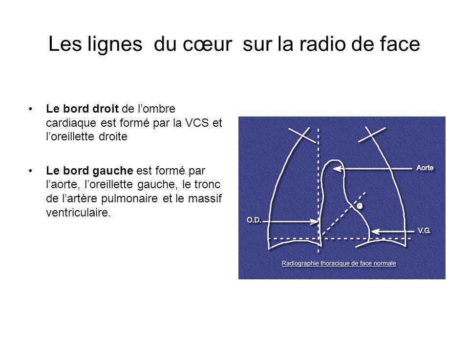 Les lignes du cœur sur la radio de face
