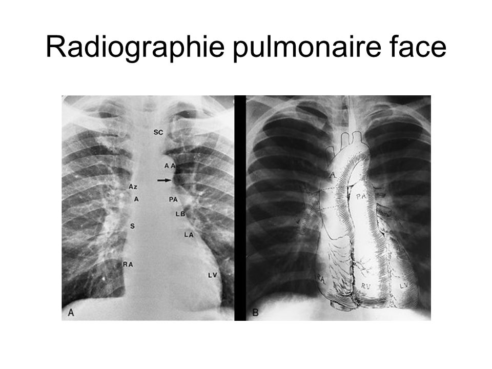 Radiographie pulmonaire face