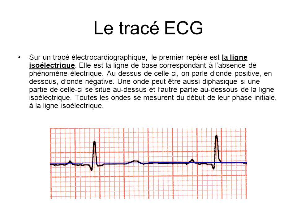 Le tracé ECG