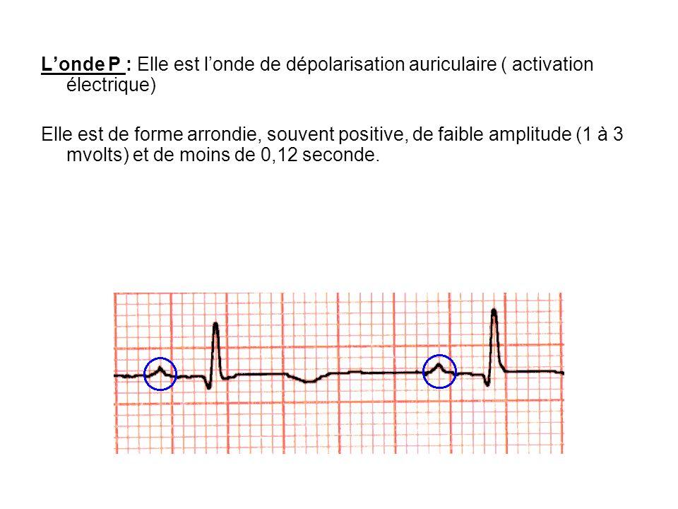 L'onde P : Elle est l'onde de dépolarisation auriculaire ( activation électrique)