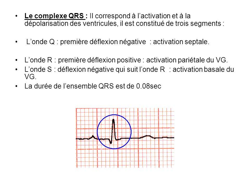 Le complexe QRS : Il correspond à l'activation et à la dépolarisation des ventricules, il est constitué de trois segments :