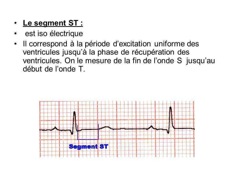 Le segment ST : est iso électrique.