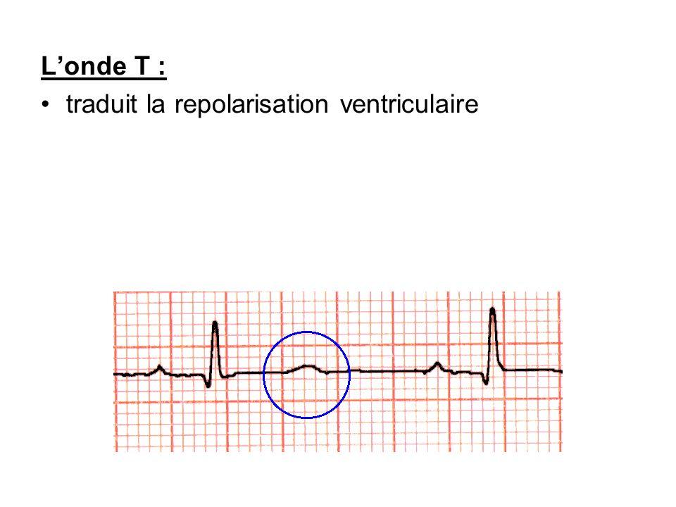 L'onde T : traduit la repolarisation ventriculaire