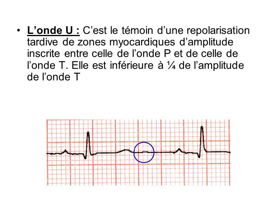 L'onde U : C'est le témoin d'une repolarisation tardive de zones myocardiques d'amplitude inscrite entre celle de l'onde P et de celle de l'onde T.