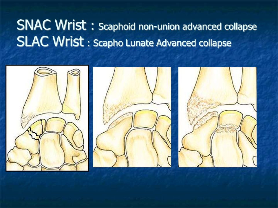 SNAC Wrist : Scaphoid non-union advanced collapse SLAC Wrist : Scapho Lunate Advanced collapse
