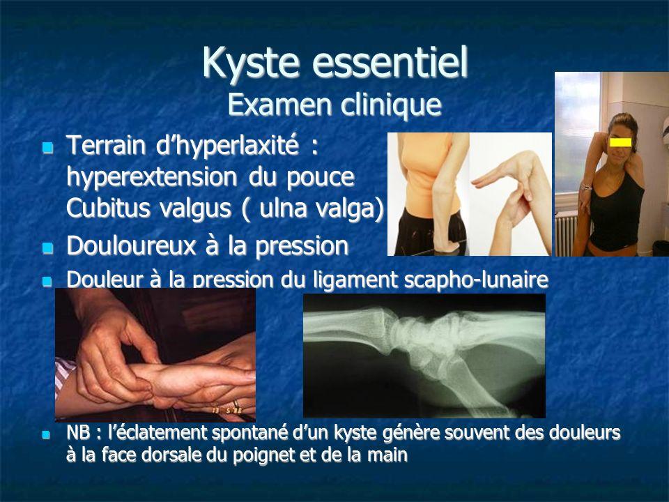 Kyste essentiel Examen clinique