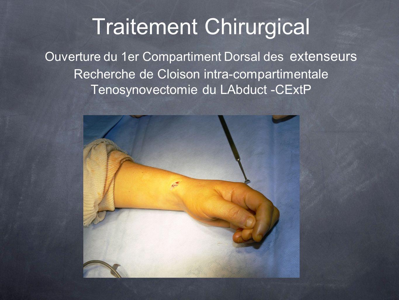 Traitement Chirurgical Ouverture du 1er Compartiment Dorsal des extenseurs Recherche de Cloison intra-compartimentale Tenosynovectomie du LAbduct -CExtP