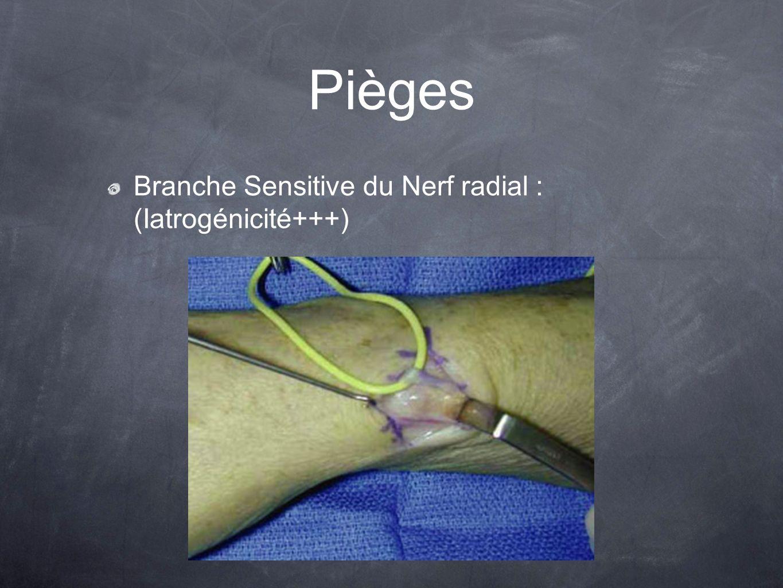 Pièges Branche Sensitive du Nerf radial : (Iatrogénicité+++)