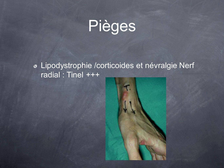 Pièges Lipodystrophie /corticoides et névralgie Nerf radial : Tinel +++