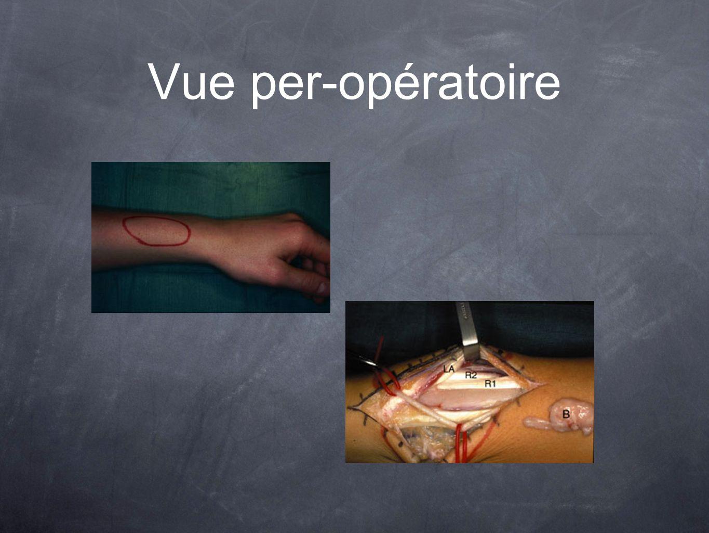 Vue per-opératoire