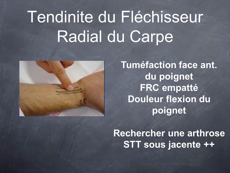 Tendinite du Fléchisseur Radial du Carpe