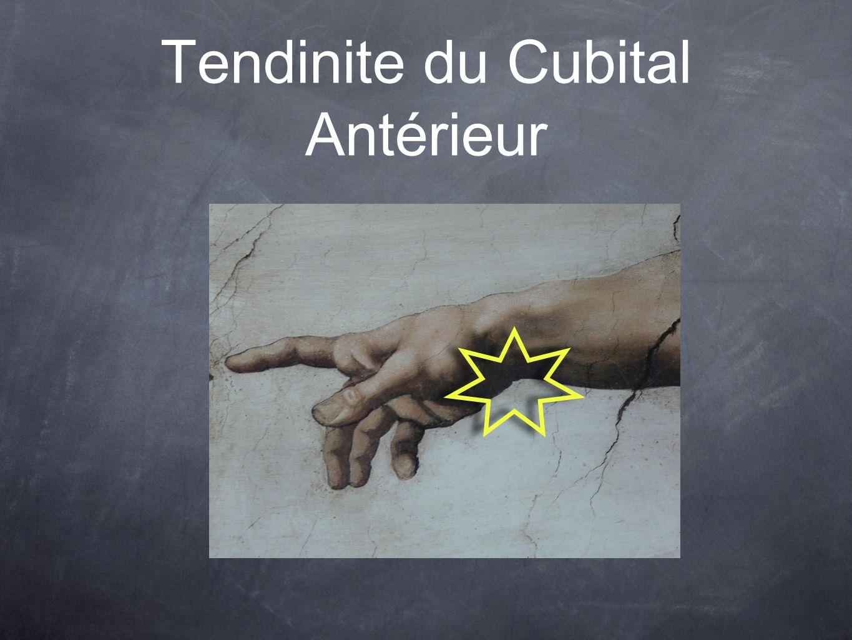 Tendinite du Cubital Antérieur