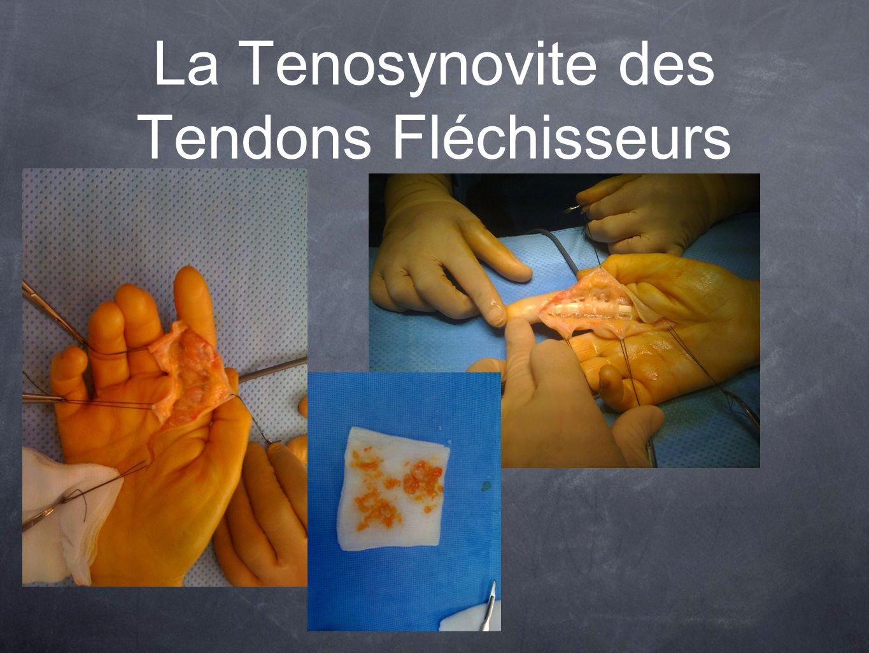 La Tenosynovite des Tendons Fléchisseurs