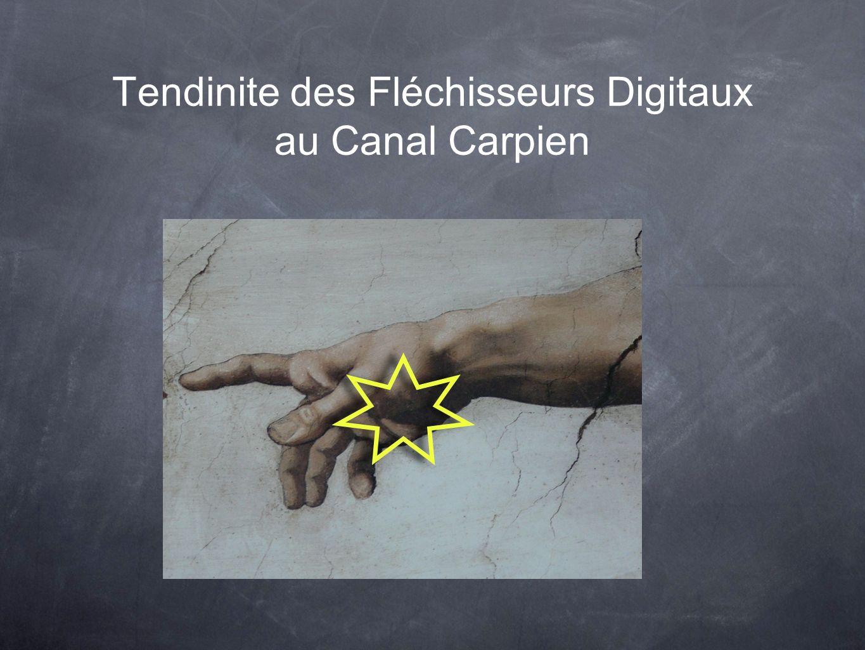 Tendinite des Fléchisseurs Digitaux au Canal Carpien