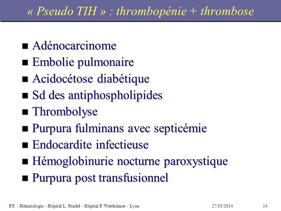 « Pseudo TIH » : thrombopénie + thrombose