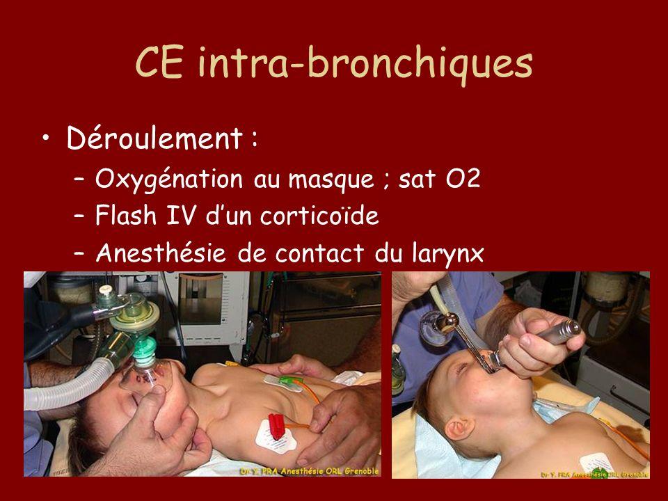 CE intra-bronchiques Déroulement : Oxygénation au masque ; sat O2
