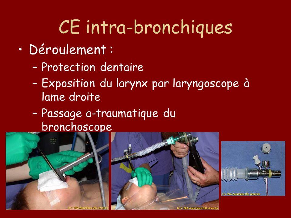 CE intra-bronchiques Déroulement : Protection dentaire