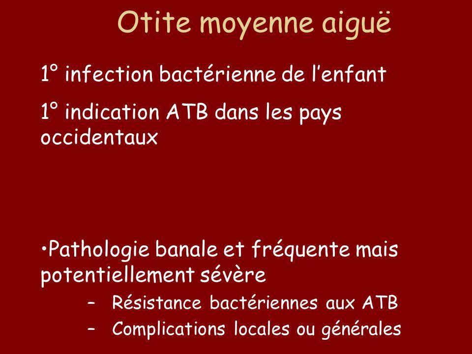 Otite moyenne aiguë 1° infection bactérienne de l'enfant