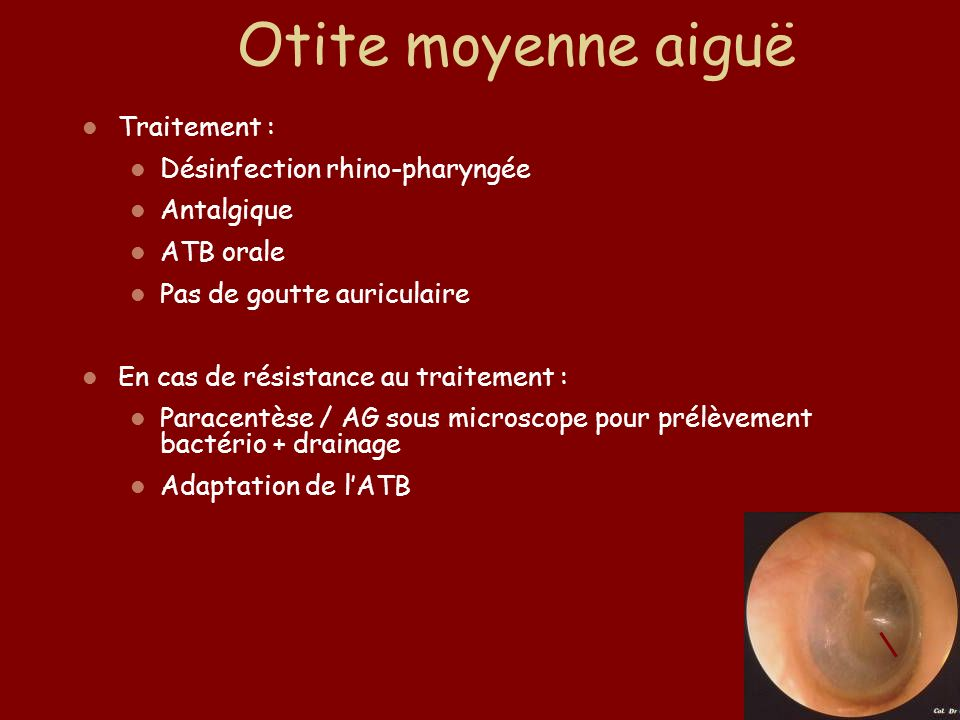 Otite moyenne aiguë Traitement : Désinfection rhino-pharyngée