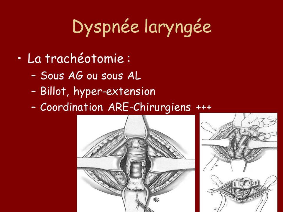 Dyspnée laryngée La trachéotomie : Sous AG ou sous AL