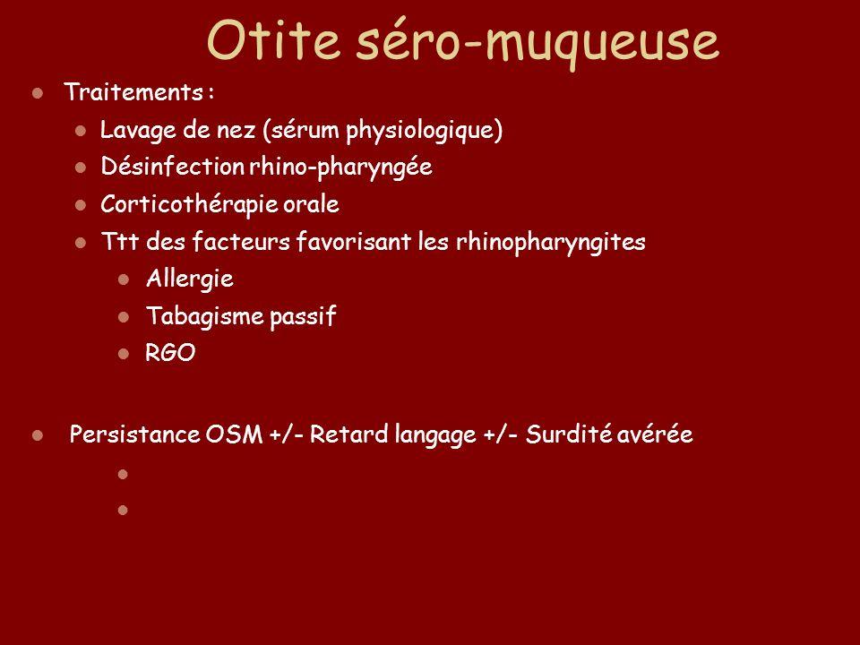 Otite séro-muqueuse Traitements : Lavage de nez (sérum physiologique)