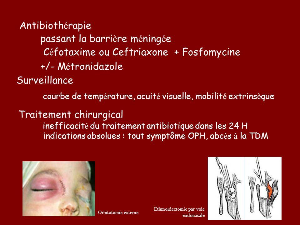 Antibiothérapie passant la barrière méningée
