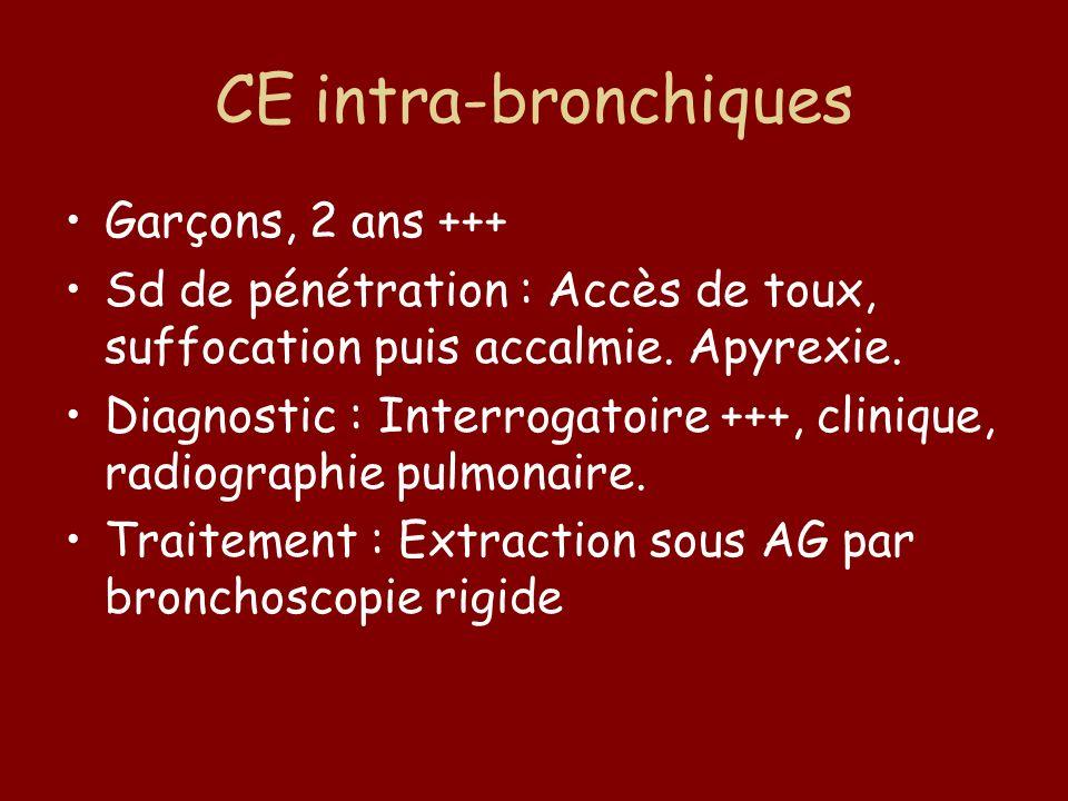 CE intra-bronchiques Garçons, 2 ans +++