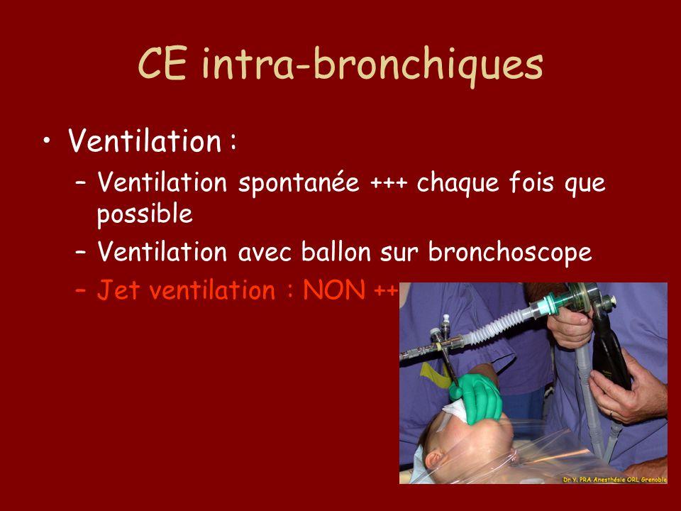 CE intra-bronchiques Ventilation :