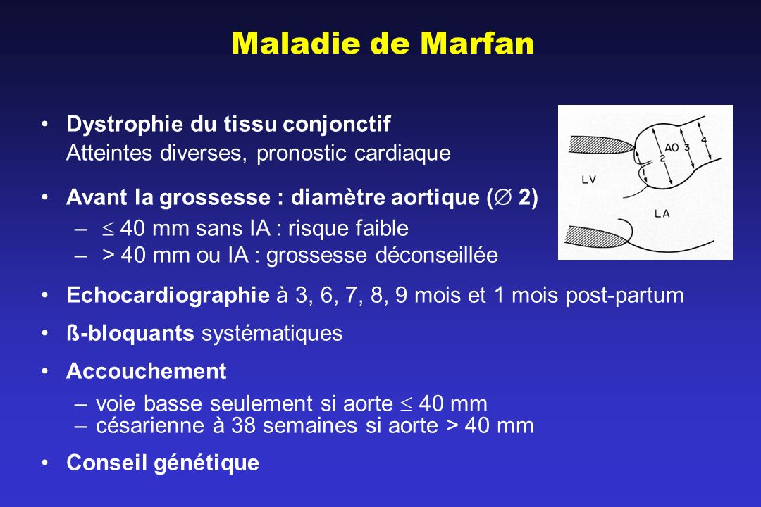 Maladie de Marfan Dystrophie du tissu conjonctif