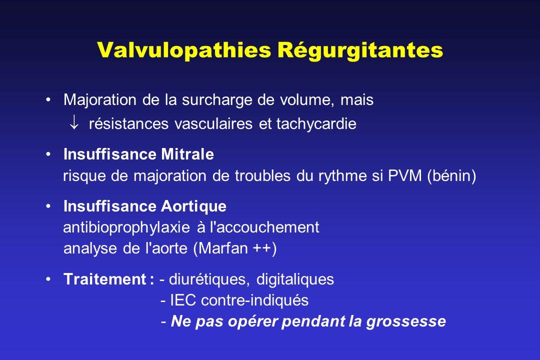 Valvulopathies Régurgitantes
