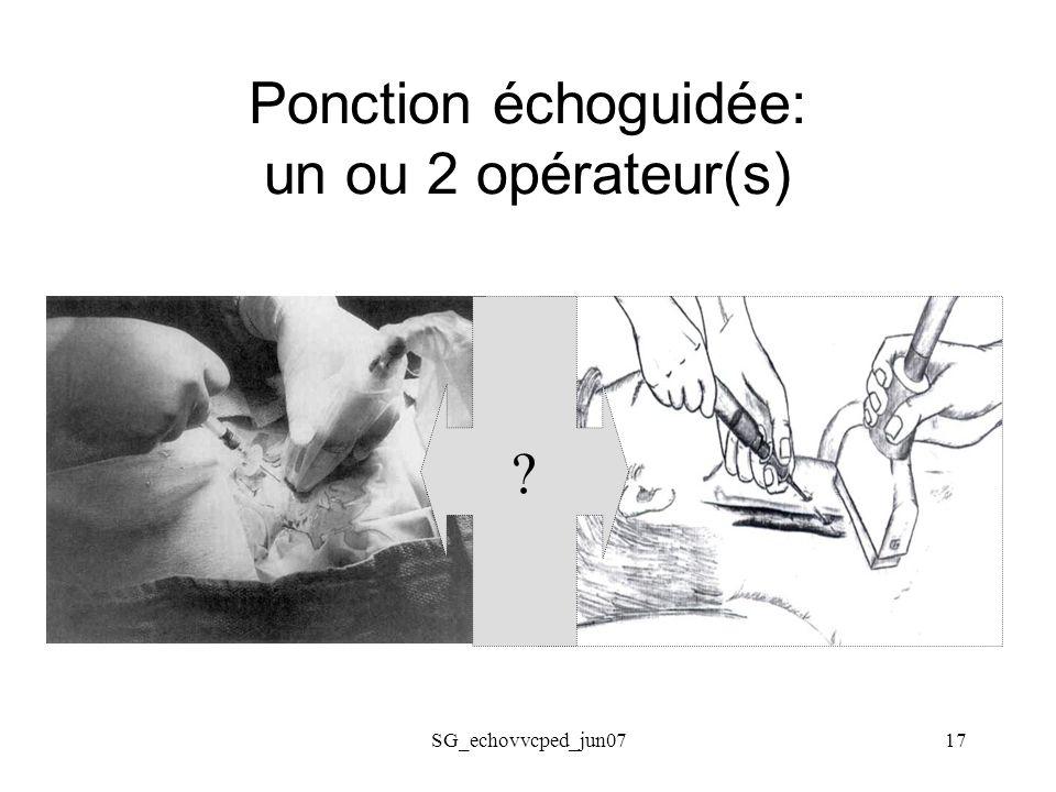 Ponction échoguidée: un ou 2 opérateur(s)