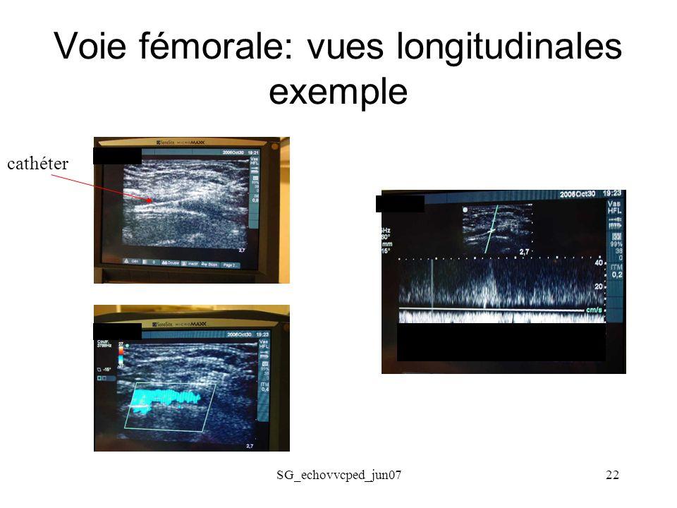 Voie fémorale: vues longitudinales exemple