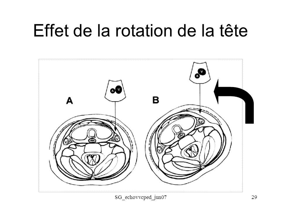 Effet de la rotation de la tête