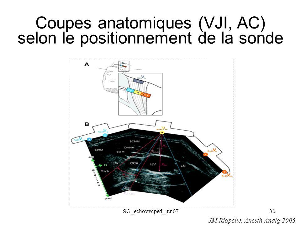Coupes anatomiques (VJI, AC) selon le positionnement de la sonde