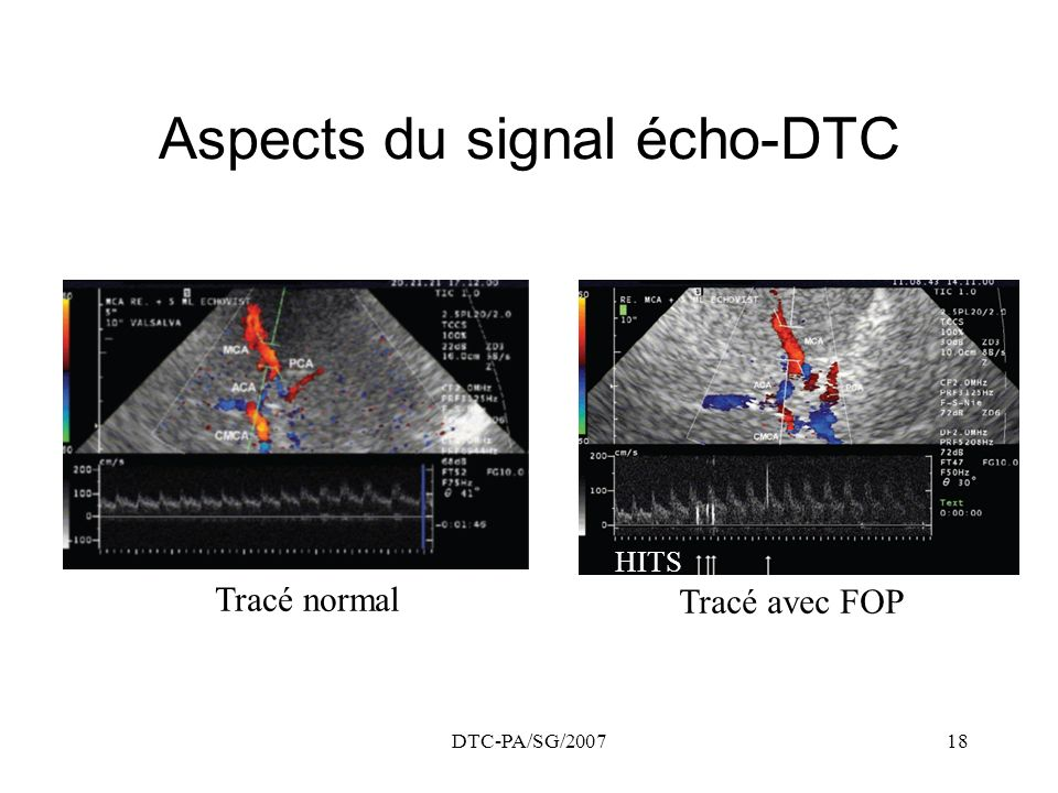 Aspects du signal écho-DTC