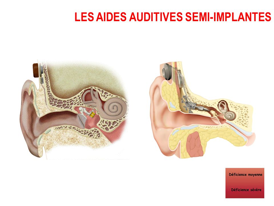 LES AIDES AUDITIVES SEMI-IMPLANTES