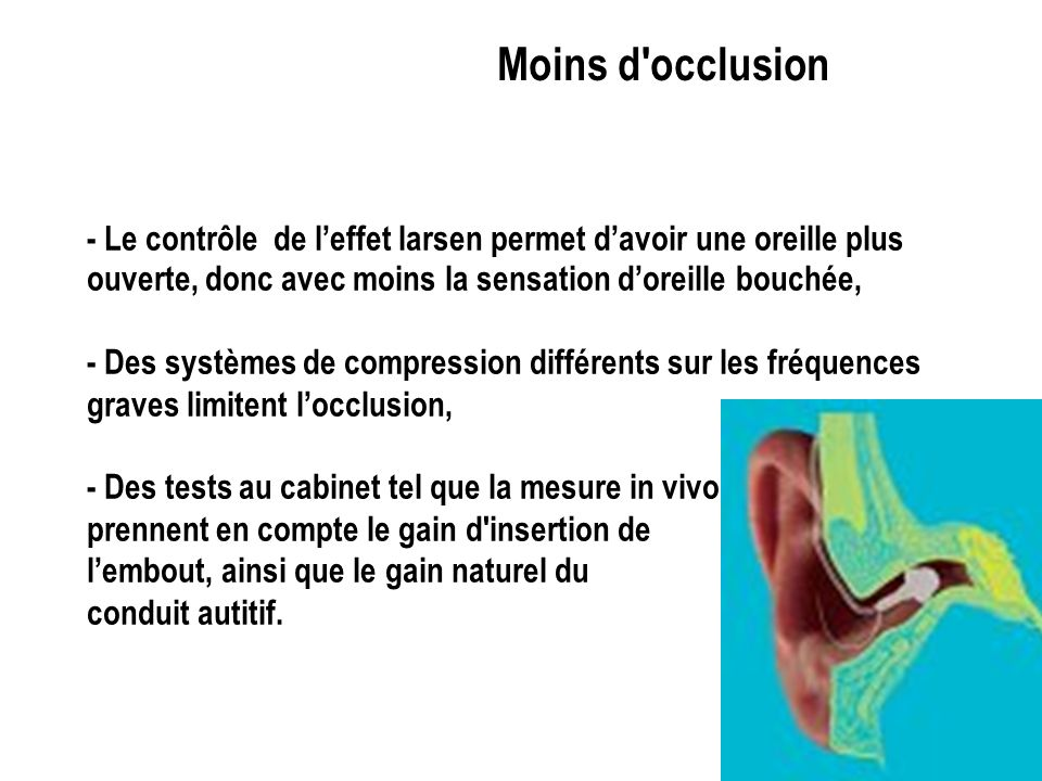 Moins d occlusion- Le contrôle de l'effet larsen permet d'avoir une oreille plus ouverte, donc avec moins la sensation d'oreille bouchée,
