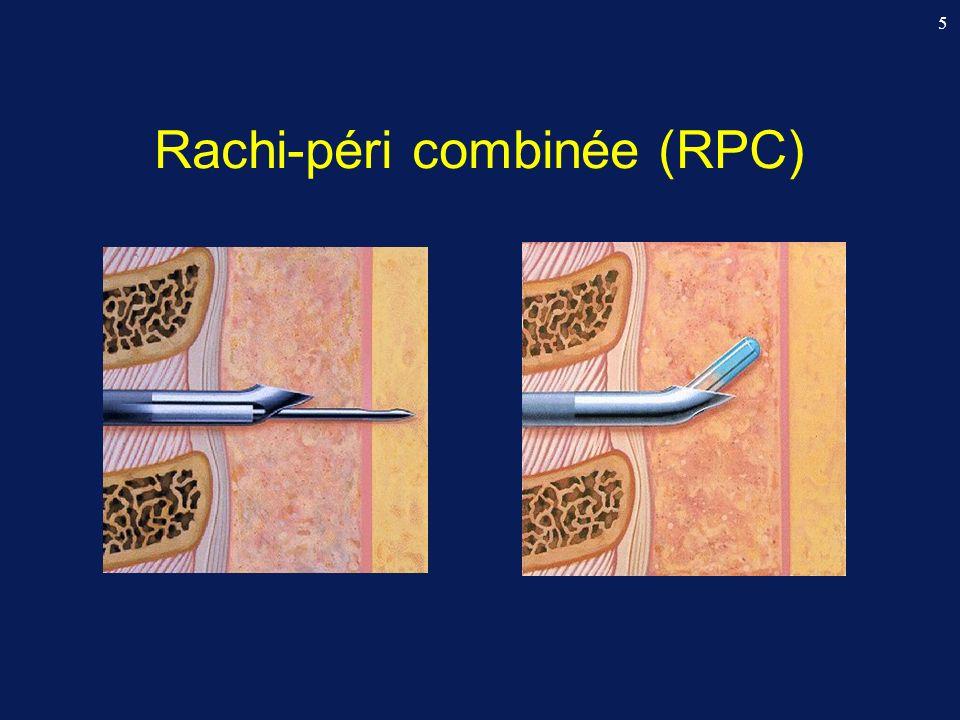 Rachi-péri combinée (RPC)