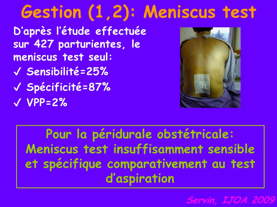 Gestion (1,2): Meniscus test