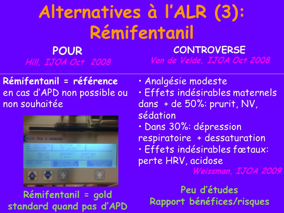 Alternatives à l'ALR (3): Rémifentanil
