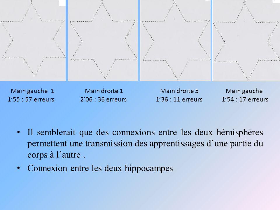 Connexion entre les deux hippocampes