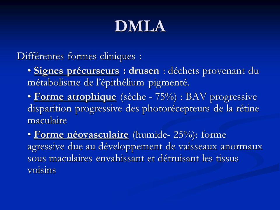 DMLA Différentes formes cliniques :