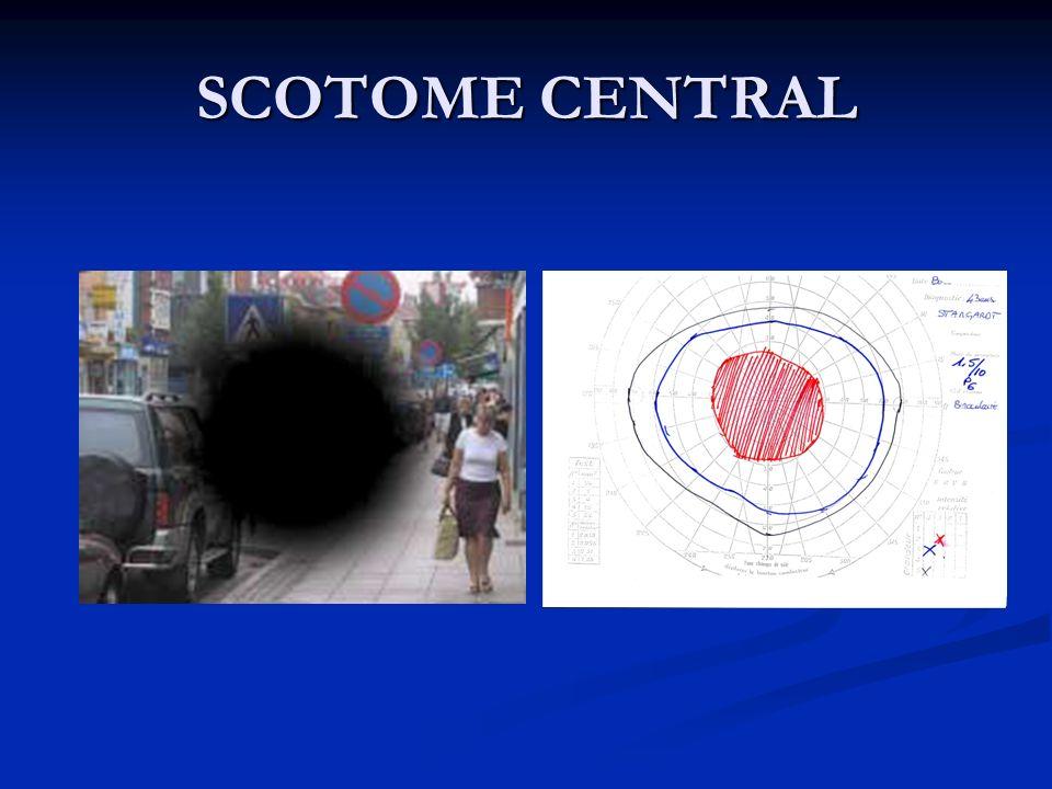 SCOTOME CENTRAL