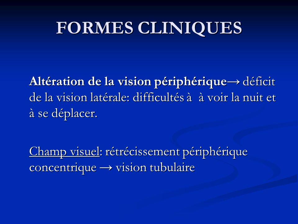 FORMES CLINIQUESAltération de la vision périphérique→ déficit de la vision latérale: difficultés à à voir la nuit et à se déplacer.