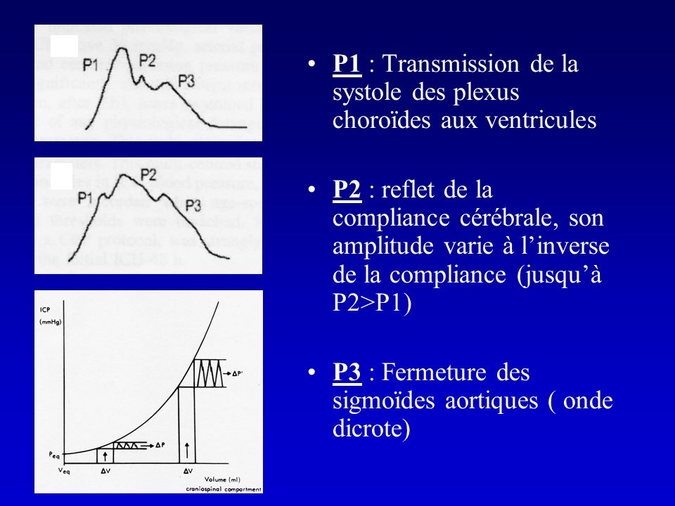 P1 : Transmission de la systole des plexus choroïdes aux ventricules
