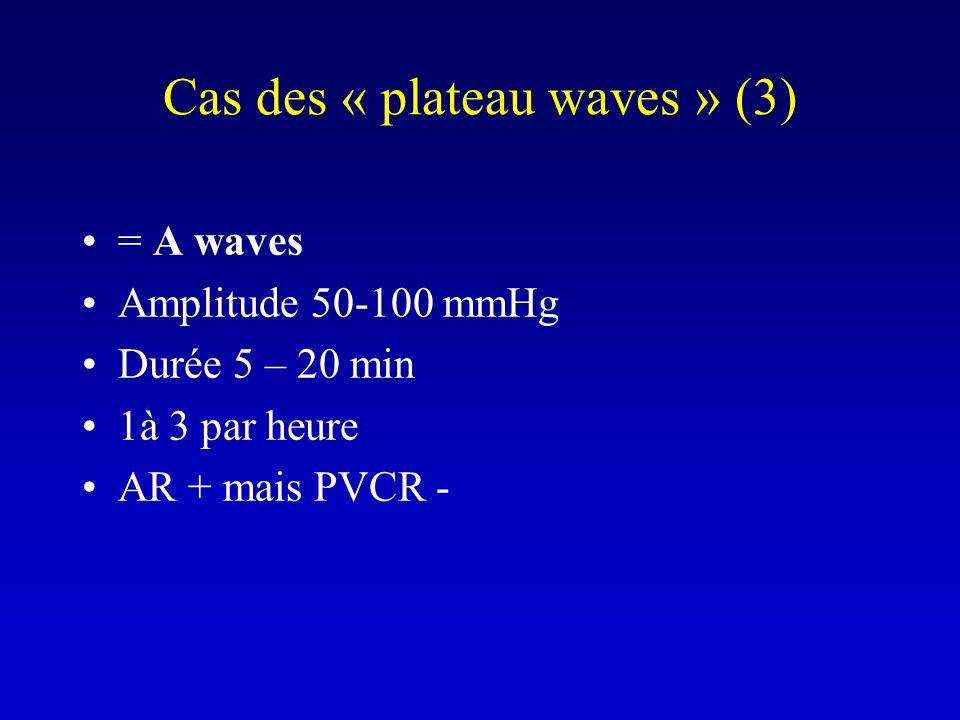 Cas des « plateau waves » (3)