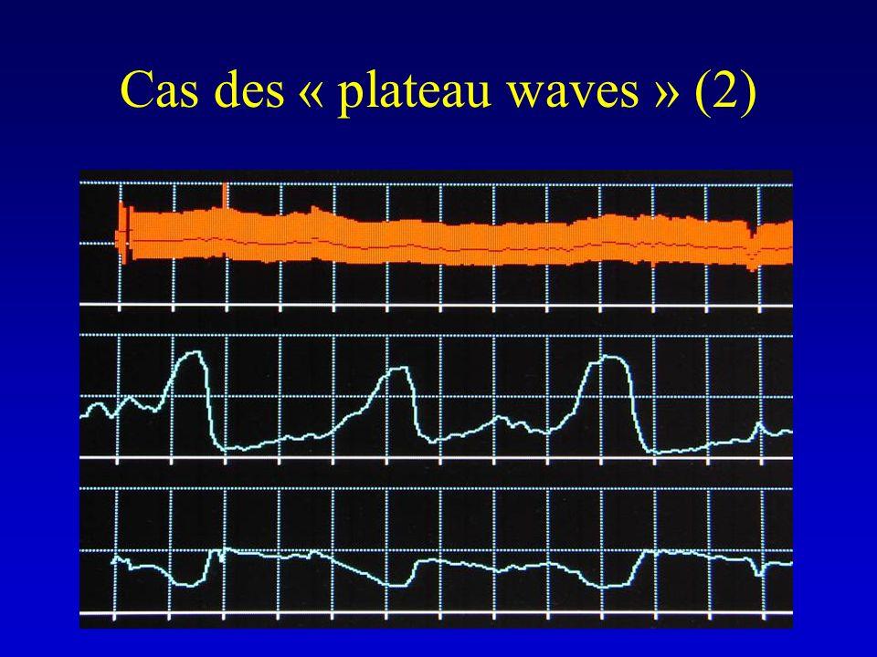 Cas des « plateau waves » (2)