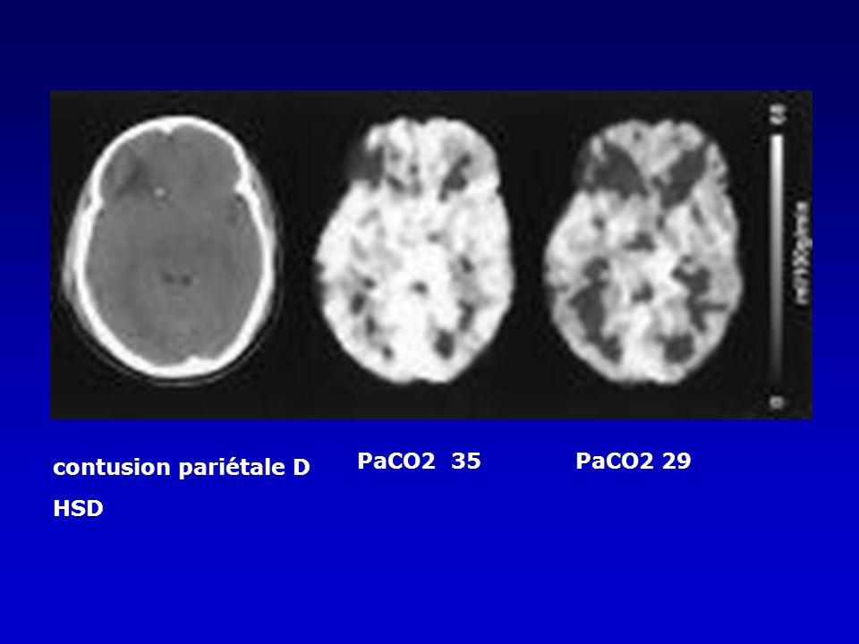 contusion pariétale D HSD PaCO2 35 PaCO2 29