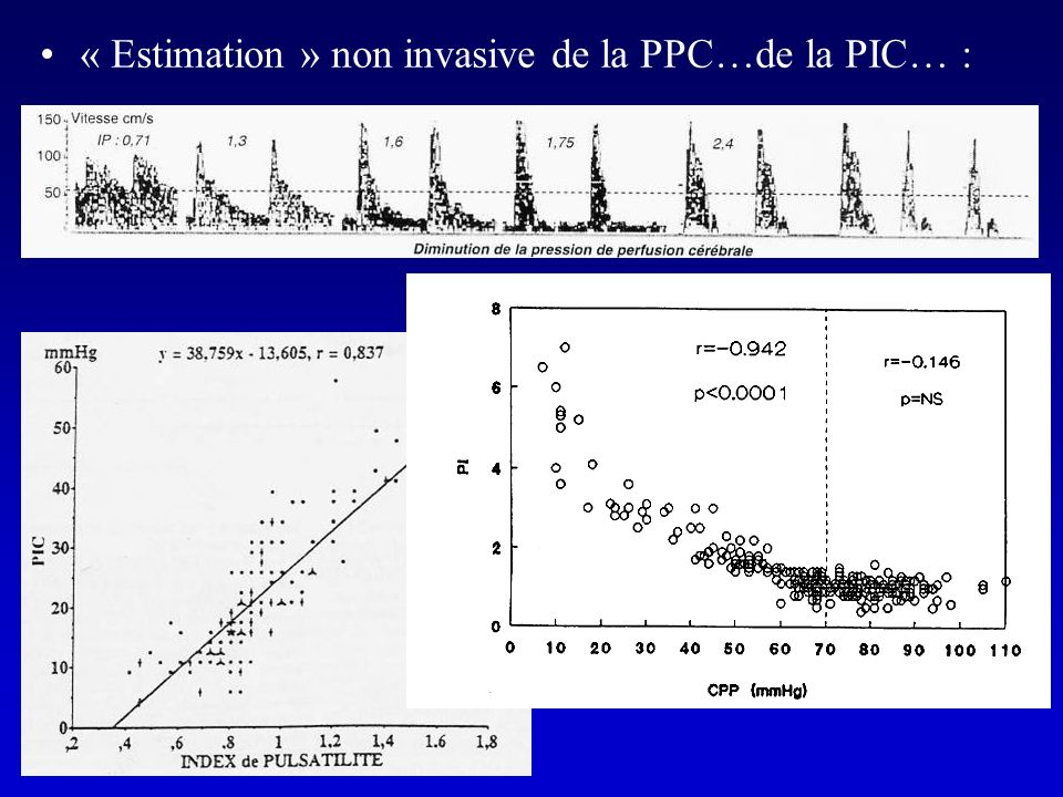 « Estimation » non invasive de la PPC…de la PIC… :