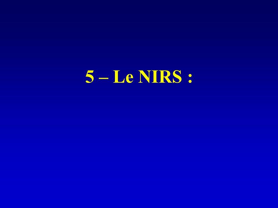 5 – Le NIRS :